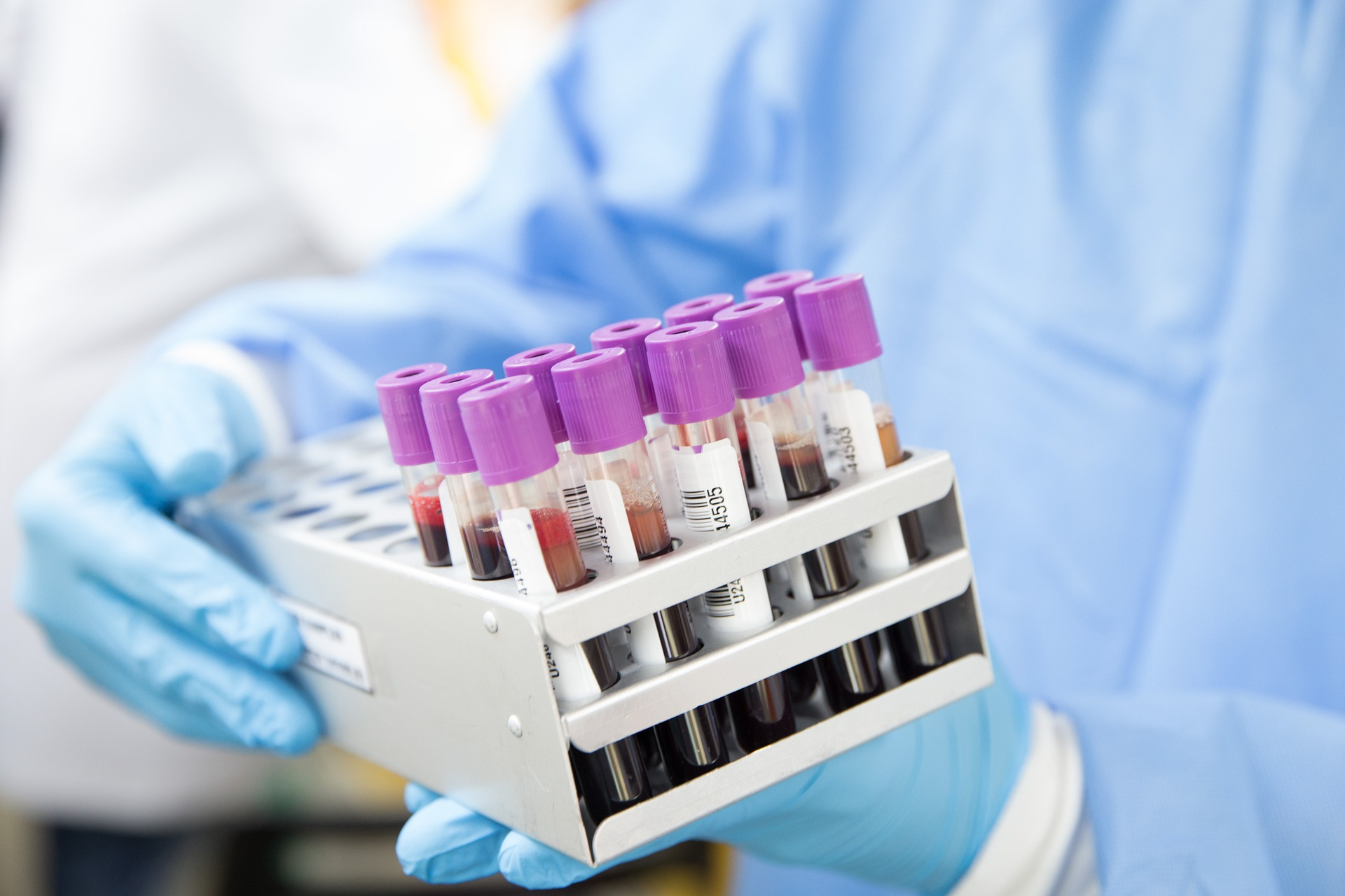 Important Blood Test Women