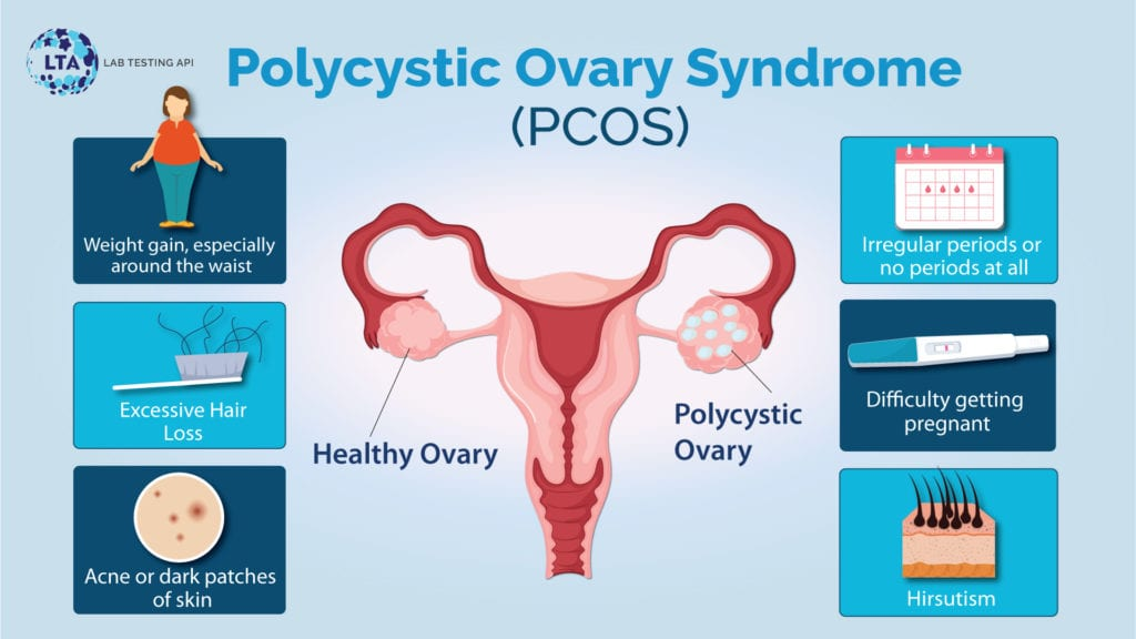 Polycystic Ovary Syndrome (PCOS): Causes, Signs, and Symptoms